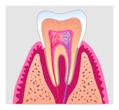 root canal in Livermore